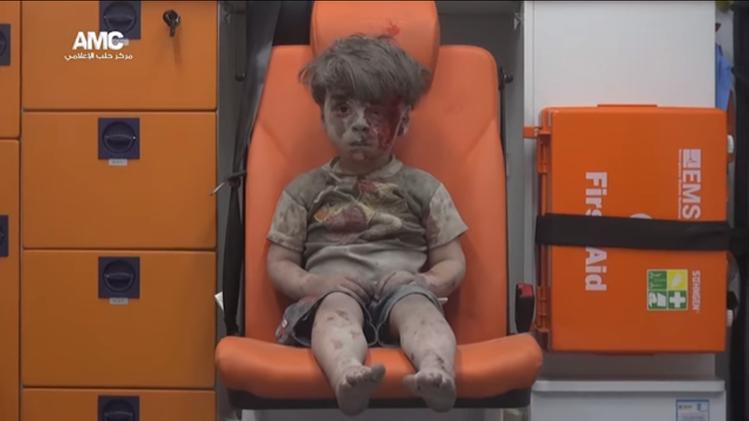 敘利亞5歲童 空襲後倖存