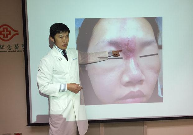 醫美不是做臉,治療前先諮詢專業醫師