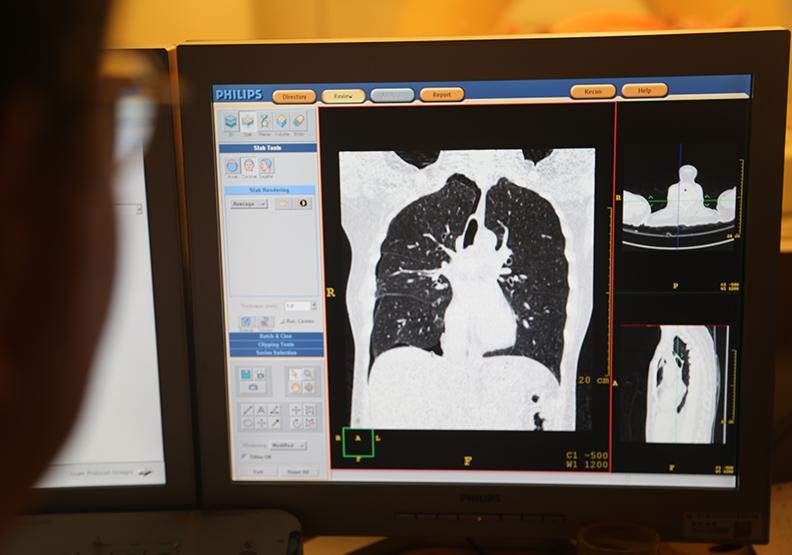 自從美國十年前開始推行肺癌篩檢, 就有研究者在評估是否達到預期效果。圖為台灣醫生檢視篩檢狀況,遠見陳之俊攝。