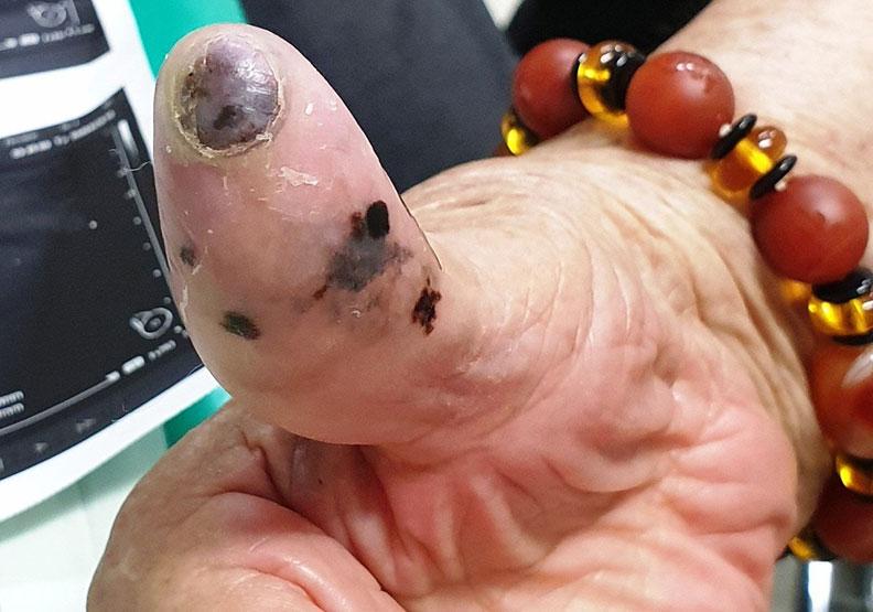 指甲黑痣伴阿嬤30年,竟是惡性黑色素瘤!