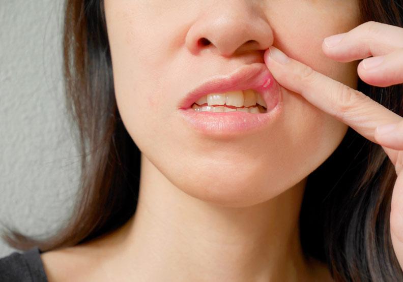 嘴破補充B群就好?先搞懂口角炎與口瘡性潰瘍的差異