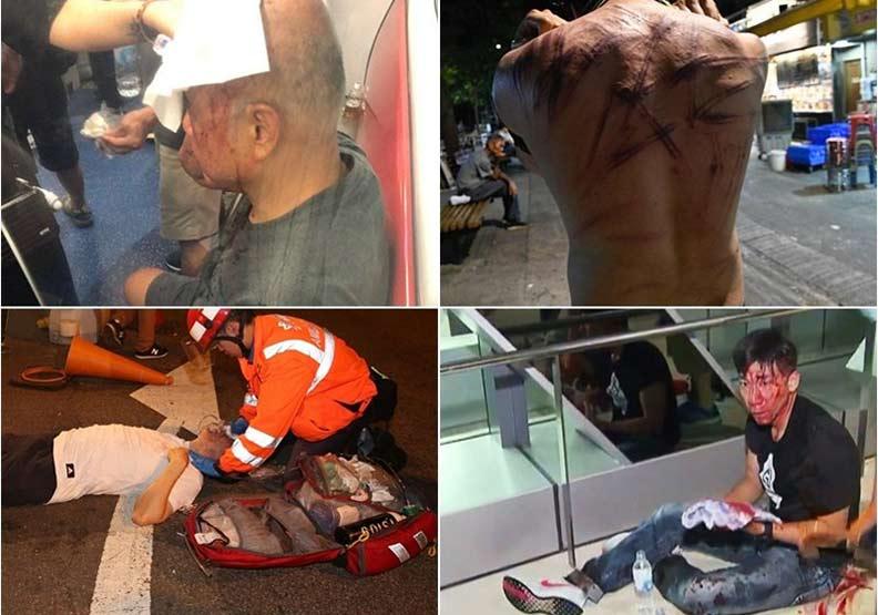 香港元朗市民遭白衣人襲擊 36人受傷送院1人危急