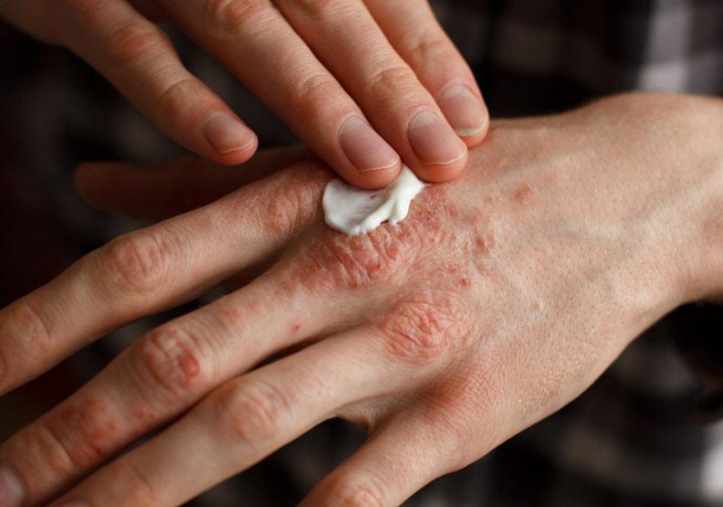 罹乾癬須及時就醫,持續惡化可能引發關節變形