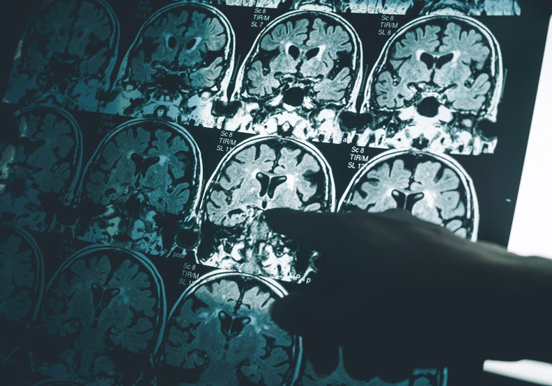 神經發炎造成腦部病變,台團隊發現減緩病程關鍵蛋白質