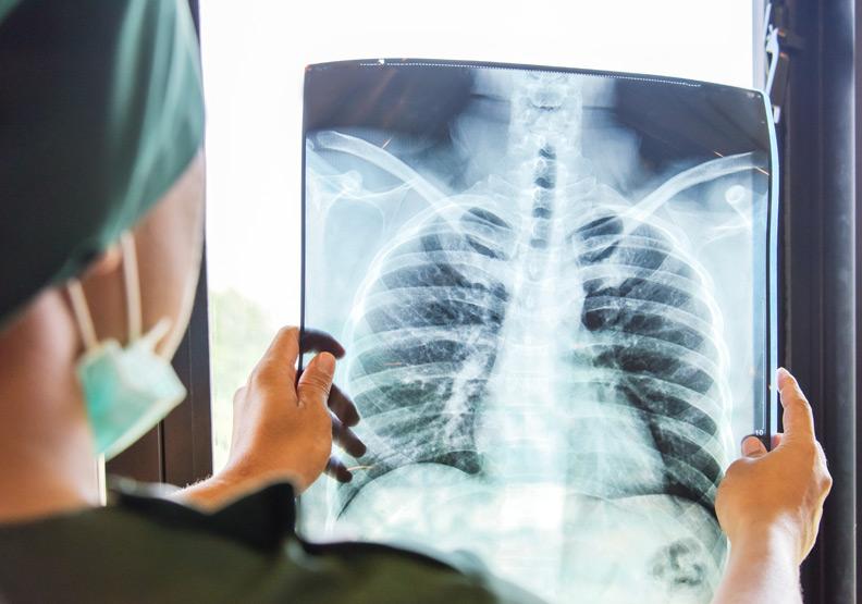 肺腺癌晚期治療不必擔心,5個QA破除用藥迷思