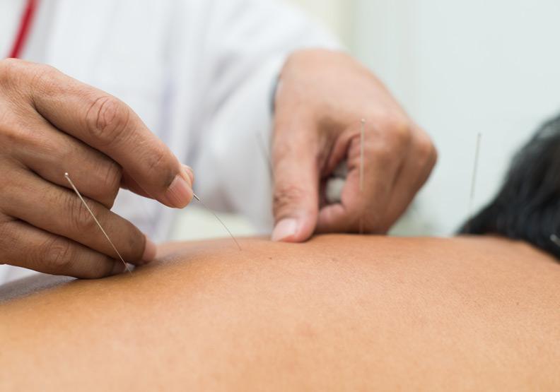 改善更年期不適,丹麥研究:可嘗試針灸治療