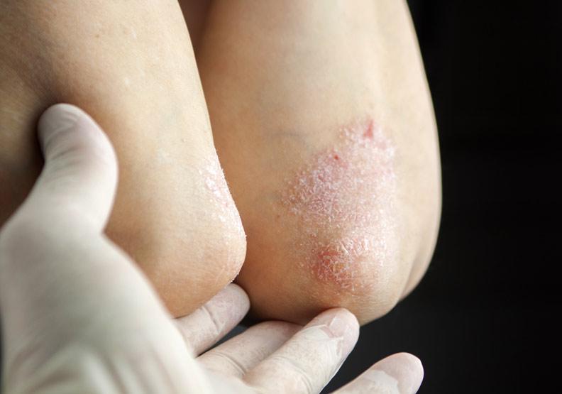 換季皮膚紅疹脫屑,生物製劑讓乾癬治療現曙光