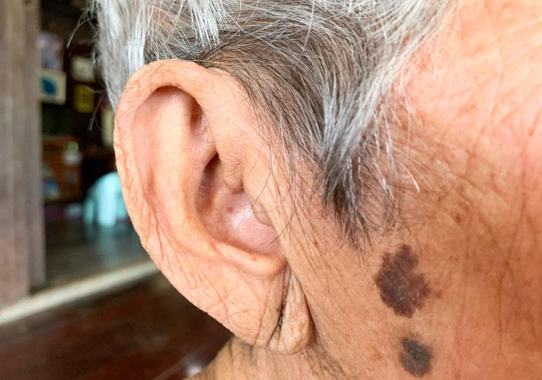 耳垂出現這狀況,居然是心肌梗塞的前兆?