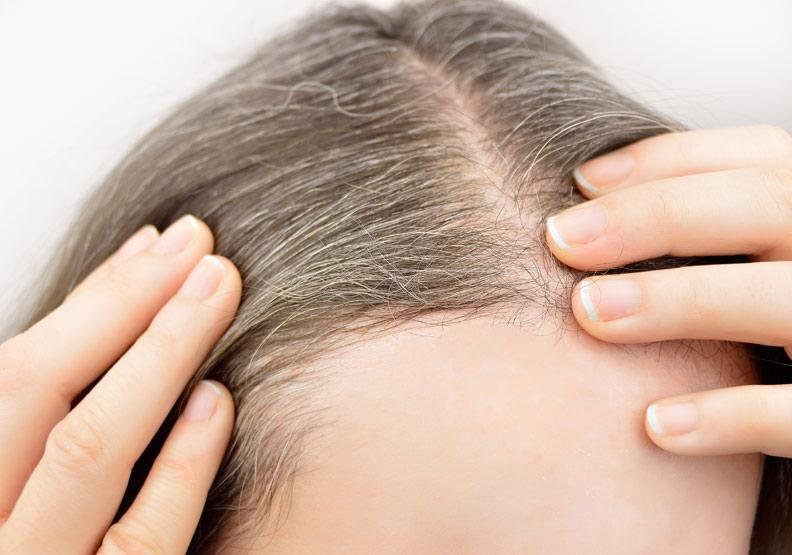 別輕信謠言!白髮如何預防?可以逆轉嗎?醫師 4 大關鍵告訴你