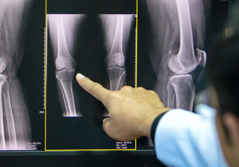 骨骼具有內分泌調節功能
