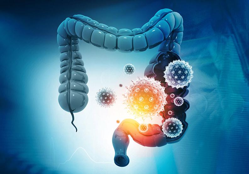 大腸直腸腫瘤最可能發生在這位置!醫師教你怎麼選醫院