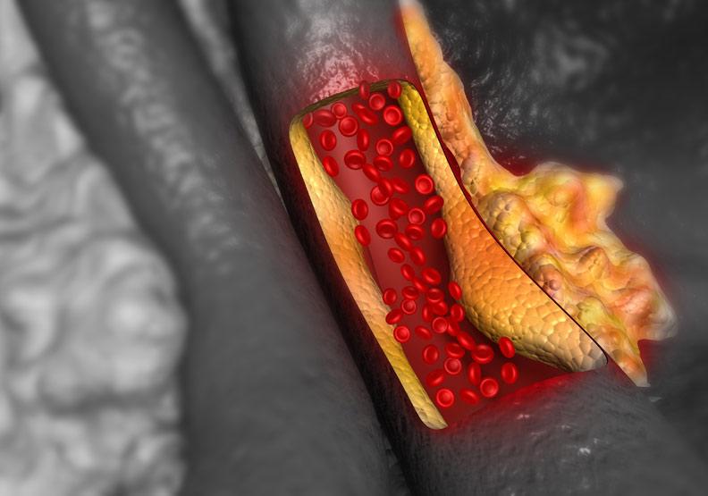「高血脂症」不可不知,關於膽固醇的 4 大錯誤迷思!