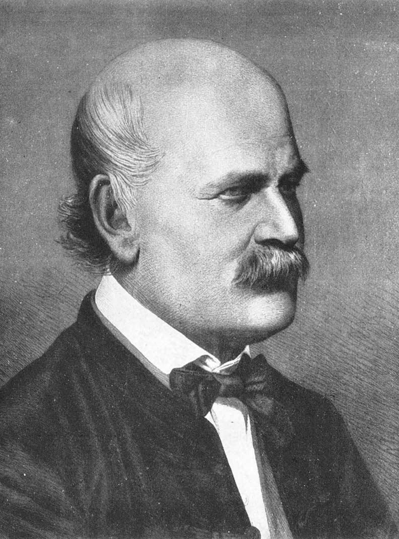 伊格納茲.塞麥爾維斯(Ignaz Semmelweis)。