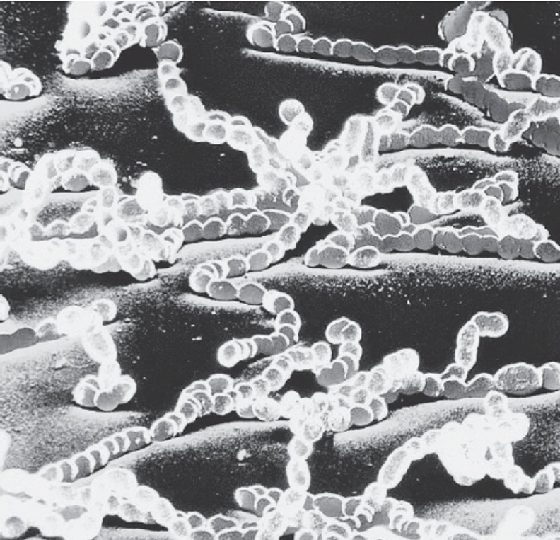 顯微鏡下的「屍體顆粒」。時報出版提供