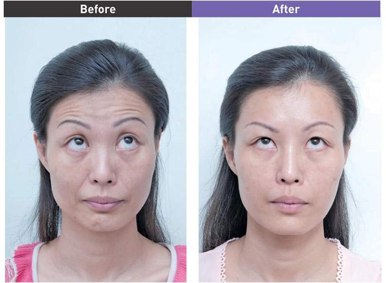 抬頭紋治療前&治療後。