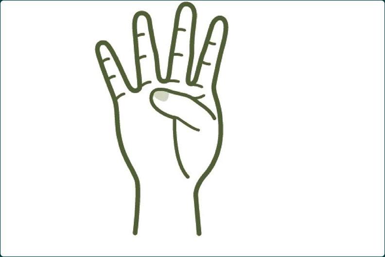 圖2、手掌上的「止火點」,在無名指下方。