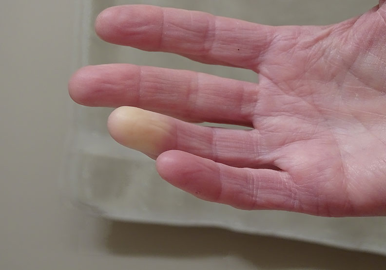 皮膚變硬變厚別大意!認識自體免疫疾病「硬皮症」