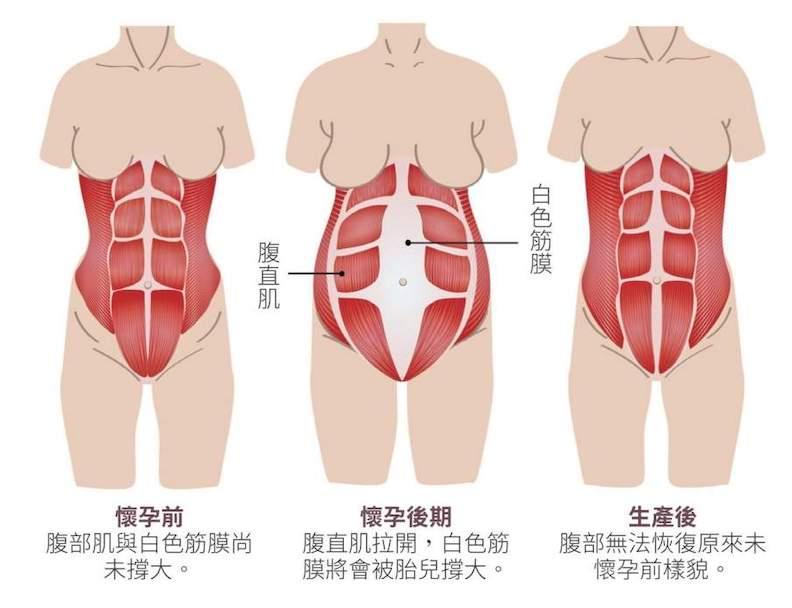 懷孕前後期腹部狀態。