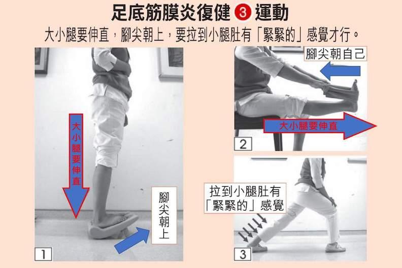 足底筋膜炎復健運動。