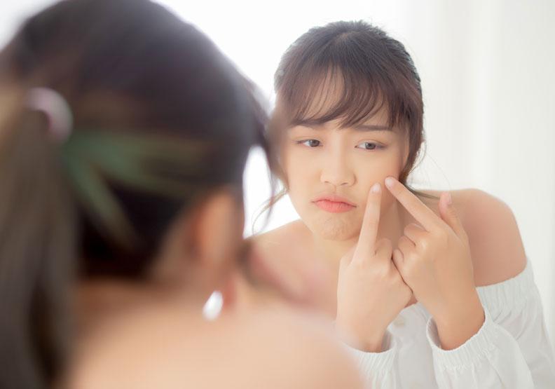 做完果酸換膚後痘痘狀況反而惡化?皮膚科醫師剖析 5 種副作用