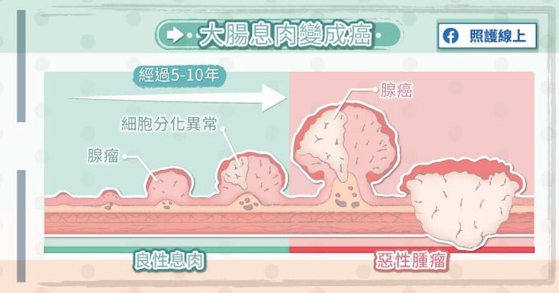 大腸息肉變成癌。