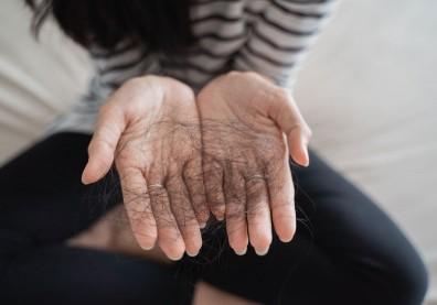 33歲女性持續焦躁、腹瀉、掉髮,確診「甲狀腺亢進」