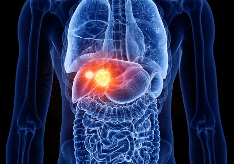 不菸不酒竟得肝癌!這關鍵原因讓他罹癌還爆瘦23公斤