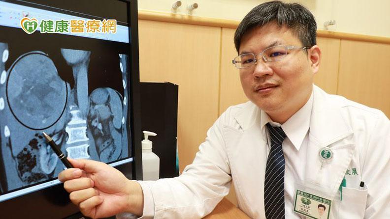 臺中慈濟醫院一般外科主任余政展說明,田先生的肝腫瘤位置達13公分;圖由臺中慈院提供。