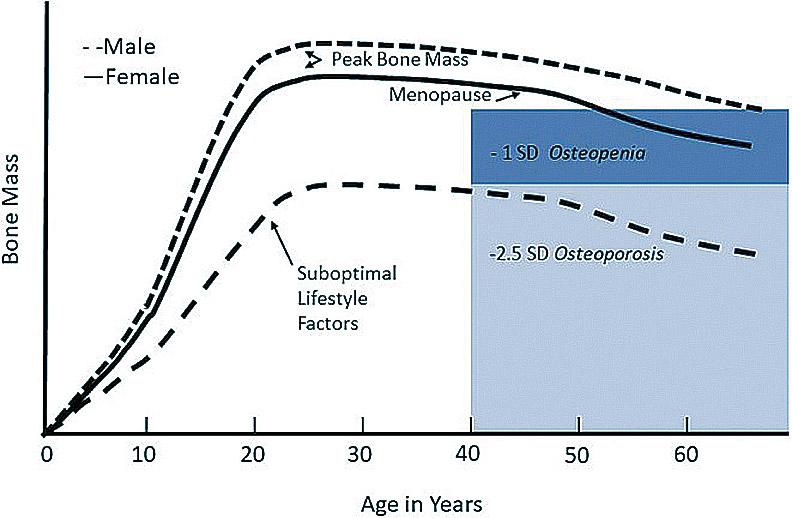 隨著年齡增加,骨質流失越多。(Evolutionary Perspectives on the Developing Skeleton and Implications for Lifelong Health (2020))