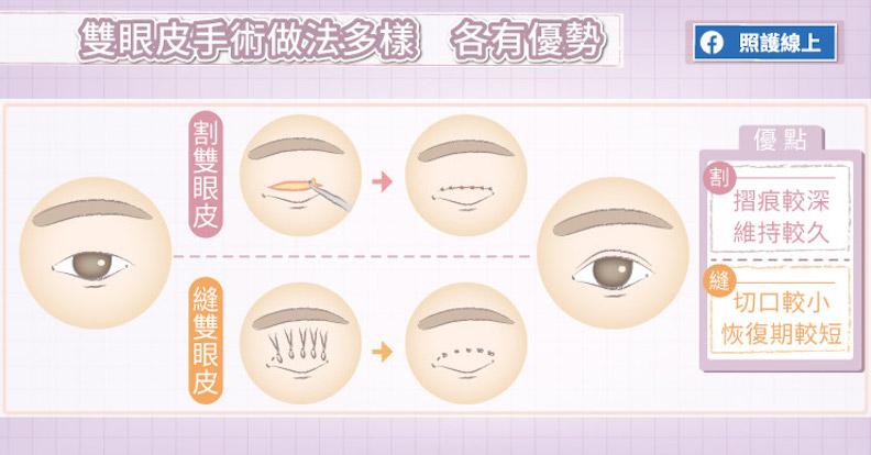 雙眼皮手術做法多樣,各有優勢。