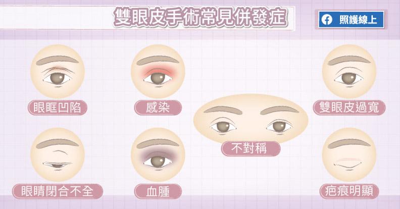 雙眼皮手術常見併發症。