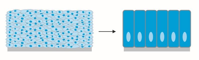 健康的食道黏膜細胞為扁平狀(左),巴瑞特氏食道病變的黏膜細胞呈柱狀。
