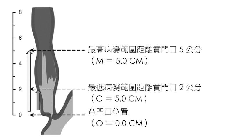 取自sharmn P. et.al. Gastroenterology 2006.NOV.131(5): 1392-9