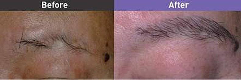 植眉手術前及術後1年。
