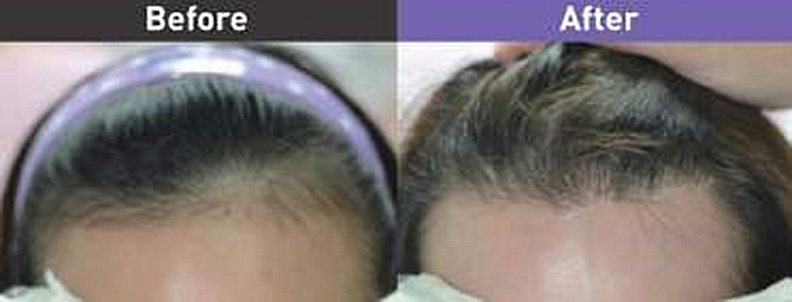 女性雄性禿植髮前後。
