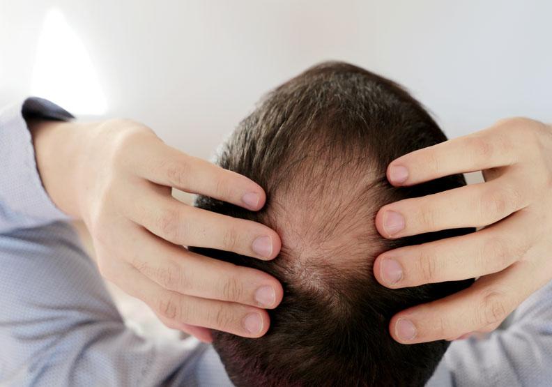 植髮能根治雄性禿嗎?皮膚科醫師帶你釐清植髮的 10 大迷思