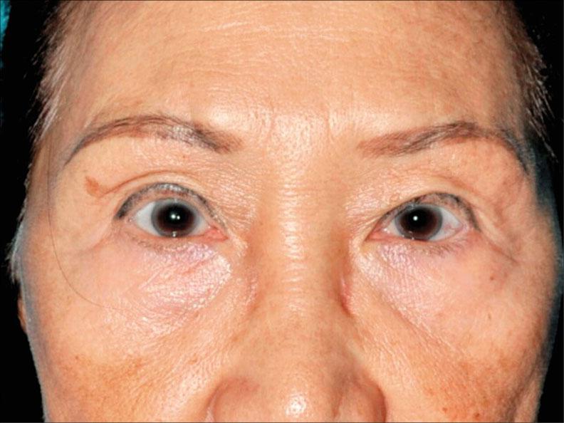 眼皮手術過分追求眼睛變大,眼神可能變凶。(照片提供/林靜芸)