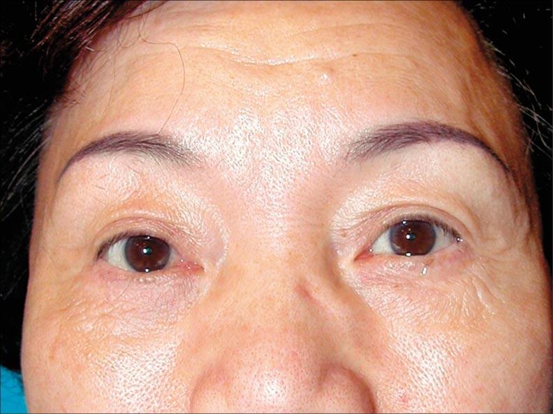 眼皮手術除了追求眼睛睜大,也該有開朗快樂的眼神。(照片提供/林靜芸)