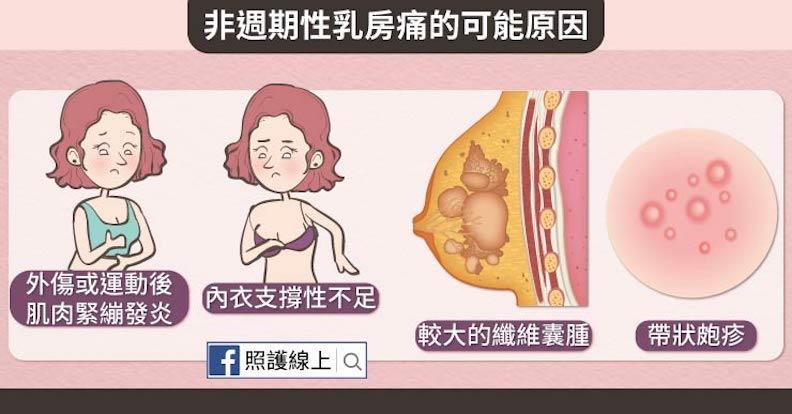 非週期性乳房痛的可能原因。