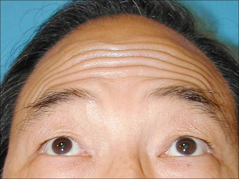 額頭寬或顴骨高的人,額頭肌無法拉提眼(眉)尾。(照片提供/林靜芸)