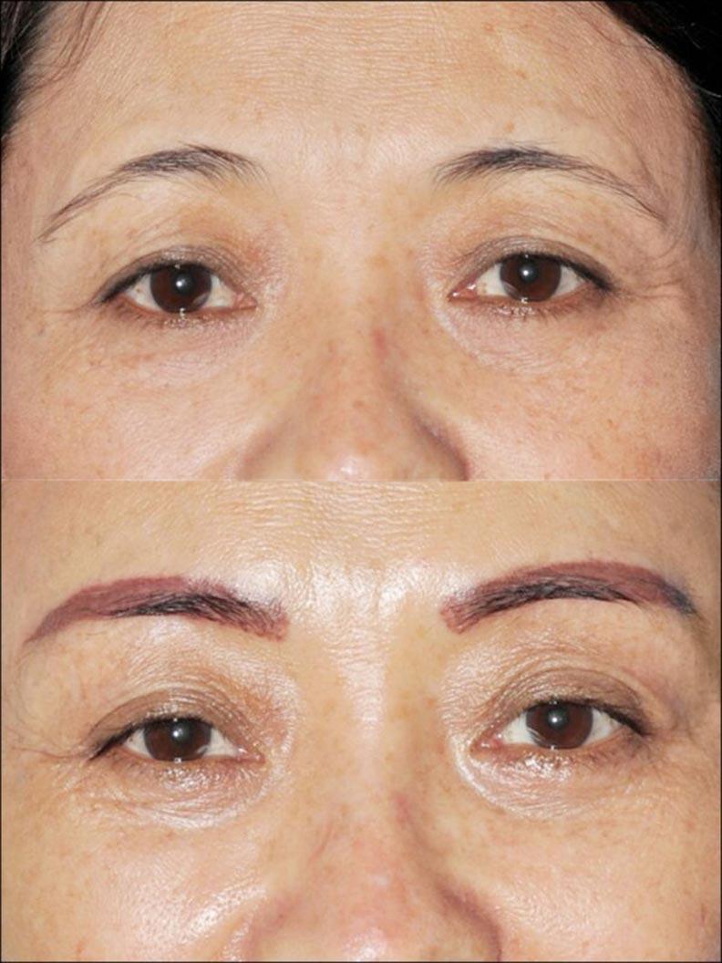皮下剝離讓眉尾脫離額頭肌的黏連,才能矯治眼(眉)尾下垂。(照片提供/林靜芸)