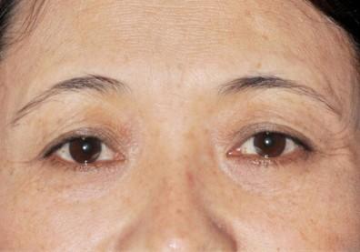 皮下剝離整眼尾下垂,拉提效果更持久