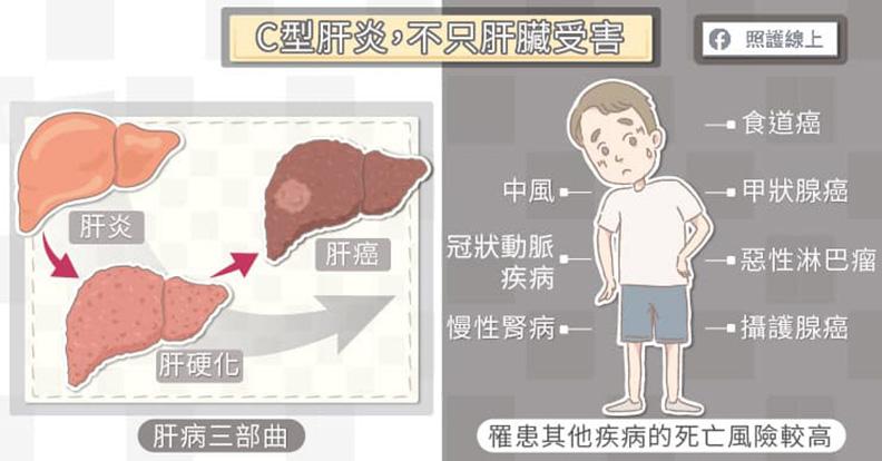C型肝炎,不只肝臟受害。