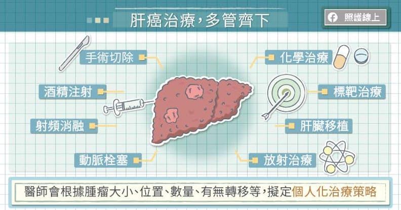 治療肝癌,多管齊下。