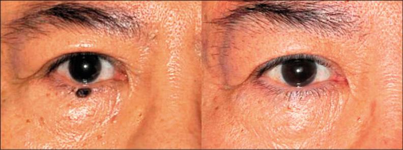 表淺的痣可以用雷射氣化處理。林靜芸提供