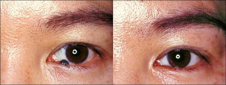 眼瞼邊緣深層凸出的痣,適用手術切除。林靜芸提供
