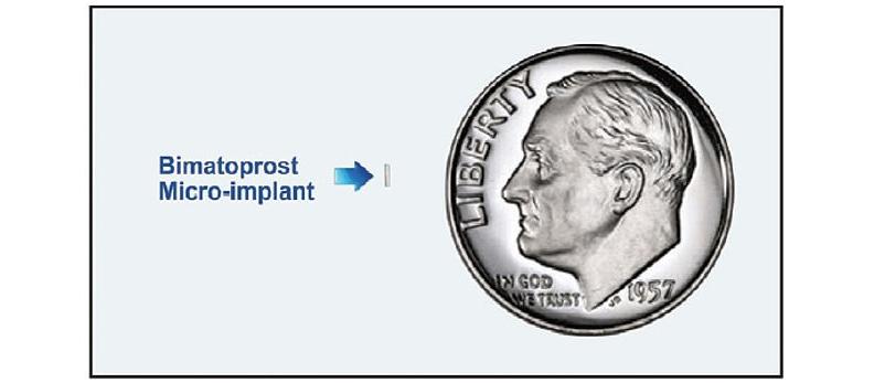 杜里斯塔植入型小藥丸和一枚美國的5分錢幣比較大小。