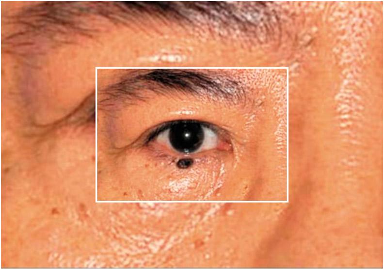 眼皮長痣困擾,適當手術不留疤