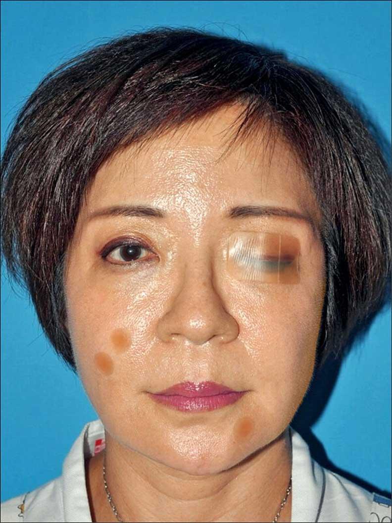 乾眼症的人可以用人工皮黏合上下眼皮,減少角膜摩擦,並防止淚水蒸發。林靜芸提供