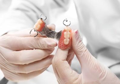 選假牙還是植牙?一表看懂優缺點,後續保養難易度也要考慮